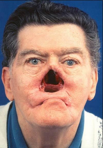 Провал носа при третичном сифилисе