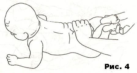 дисплазия тазобедренных суставов у взрослых упражнения