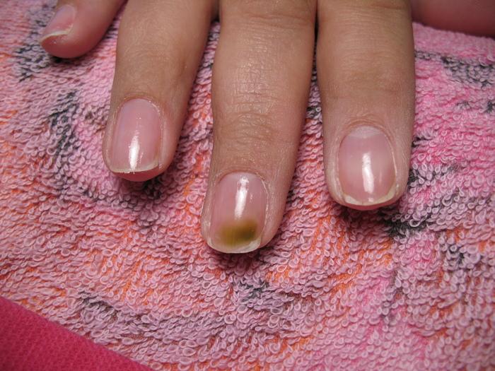 Грибок ногтей под гелем