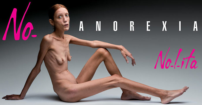 AnorexiaNoES_800x416 (700x364, 39Kb)