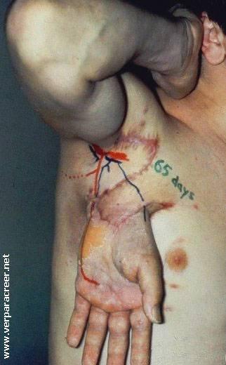 28852338_hand_transplant (322x520, 27Kb)