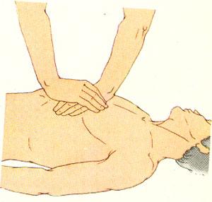 массаж сердца