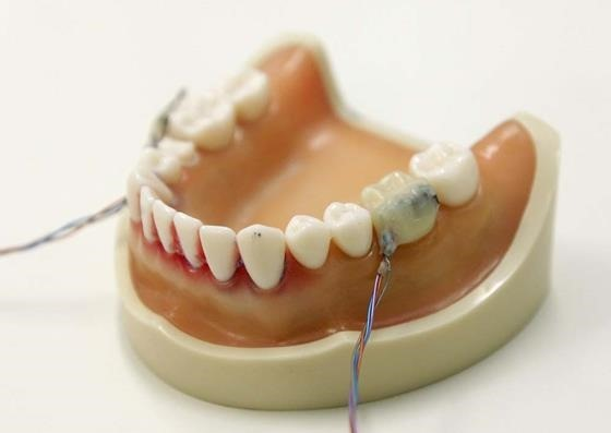 зубы04