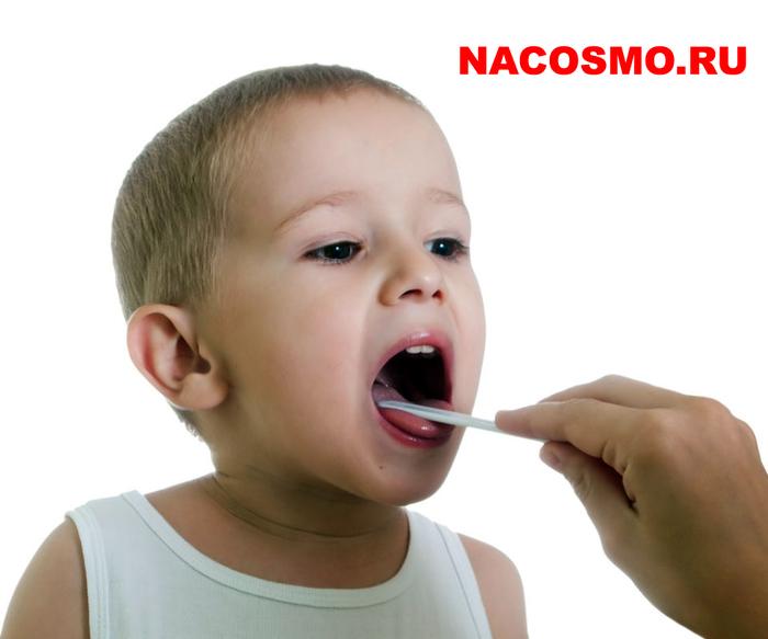 симптомы признаки ларингита у детей, как болеют ларингитом,/4682845_kak_lechit_laringit_u_detey_ (700x583, 157Kb)