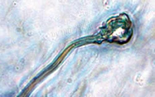 искусственная спермА