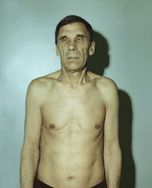 Болезнь Аддисона (бронзовая болезнь, надпочечниковая недостаточность)