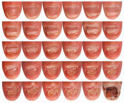 Leczenie-grzybicy-paznokci-2 (400x331, 120Kb)