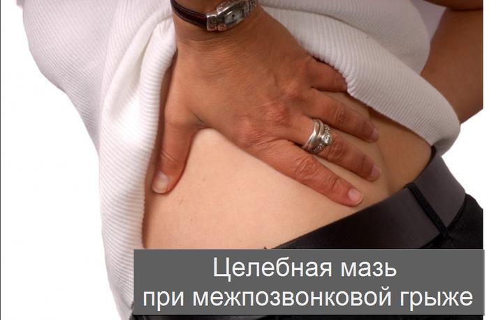 2749438_Celebnaya_maz_pri_mejpozvonkovoi_grije (700x459, 313Kb)