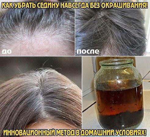 4924802_kak_ybrat_sediny (492x451, 79Kb)