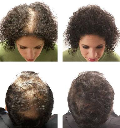 """окрашивание волос рецепты восстановление волосxампулы для волосxгорячее восстановление волосxнародные рецепты восстановления волосx10 рецептов восстановления волосxмаска для глубокого восстановления волосx4 рецепта для восстановления волосxламинирование волос желатиномxпроцедура восстановления волосxмаска для роста и восстановления волосxповрежденные волосыxпрограмма восстановления волосxтравы для волосxмаска для блеска волосxрецепты для восстановления волосxсредство от выпадения волосxдля восстановления волосxклиника восстановления волосxкапсулы для восстановления волосx""""экспресс-рецепты"""" для восстановления волос"""