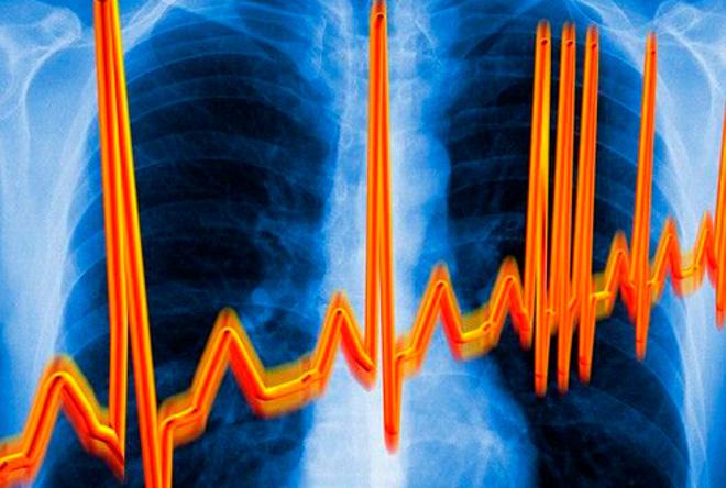 сердечная аритмия (660x444, 137Kb)