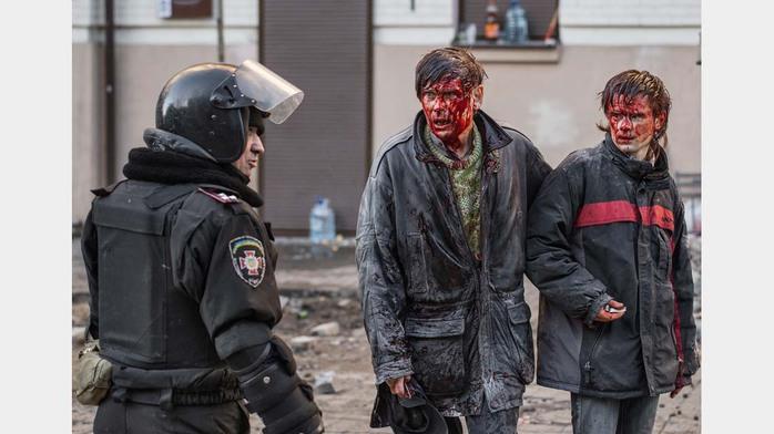 Февраль.Киев Пострадавшие сторонники оппозиции на майдане Незалежности (700x392, 69Kb)
