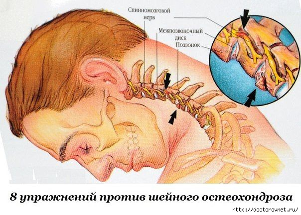 1421786679_sheynuyy_osteohondroz (604x432, 177Kb)