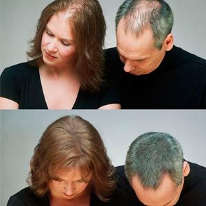 восстановление волос/3881693_003 (300x300, 71Kb)