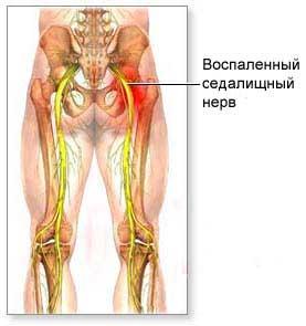 1422201400_ishias_sedalishnuyy_nerv (277x295, 11Kb)