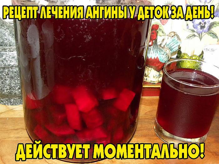 1423080996_angina_u_detey (700x525, 169Kb)