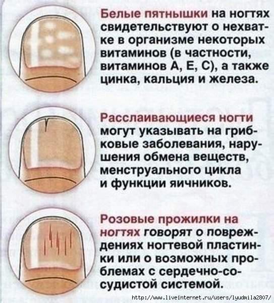 ногти (543x600, 182Kb)