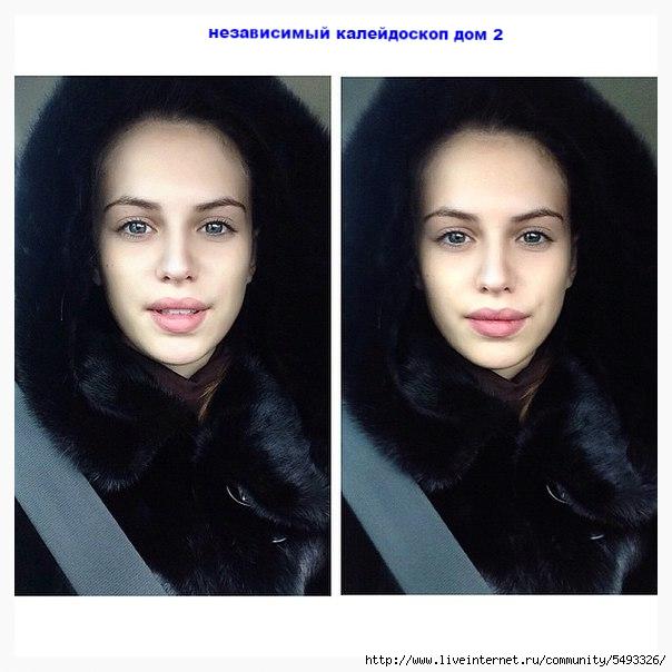 артемова саша до и после пластики фото