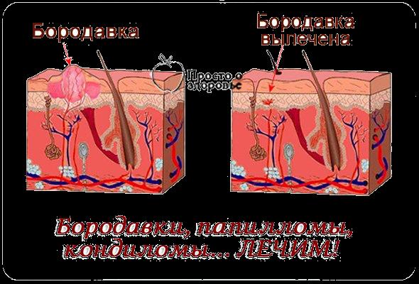 папилломы и кондиломы фото
