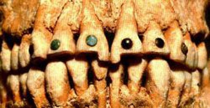 ancient dentistry