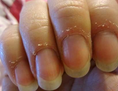 Если появился запах у ногтей