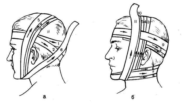 Повязку на один глаз начинают с закрепляющего хода вокруг головы.  Далее бинт ведут с затылка под правое ухо на...