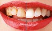 Протезирование зубов, лечение зубов и имплантация зубов, хирургическая стоматология, установка зубных имплантантов | Mr.Dent –  круглосуточная стоматология в Москве.