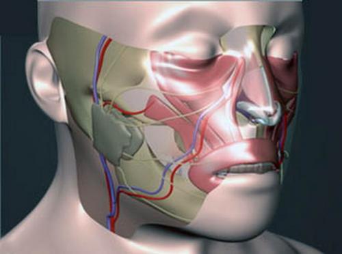 Операция по практически полной имплантации лица