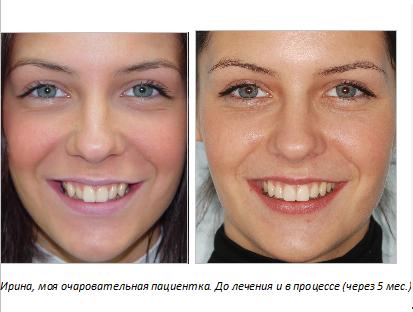 Удаление зуба мудрости меняется ли форма лица