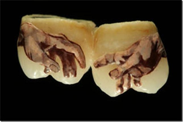 татуировки на зубах - руки микеланджело