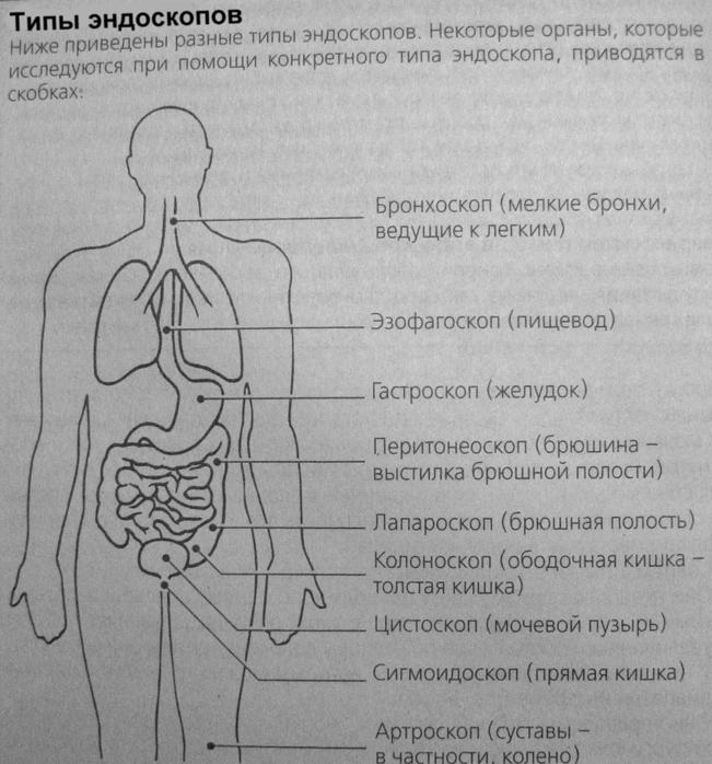 Сфигмоскоп фото