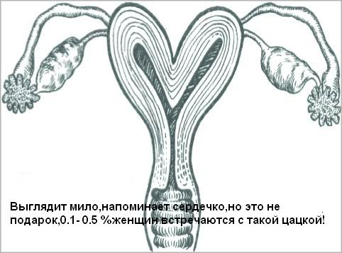 Рис. 5. Двурогая матка (трубы и яичники)