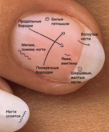 Люди помогите вылечить грибок на ногтей