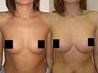 Результат от использования крема для увеличения груди Bust Salon Spa/1389517668_krem_dlya_uvelicheniya_grudi (140x105, 10Kb)