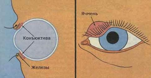 ЯЧМЕНЬ ГЛАЗ (486x251, 18Kb)