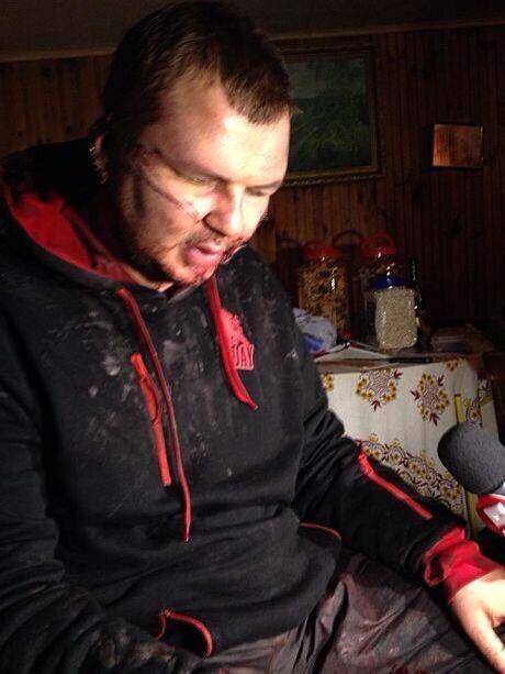 Под Киевом нашли лидера Автомайдана Дмитрия Булатова со следами пыток и издевательств . ВИДЕО.