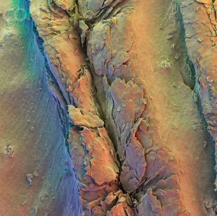 организм человека под микроскопом фото 5 (700x697, 347Kb)