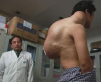 Гигантска опухоль на спине у китайца (340x276, 23Kb)