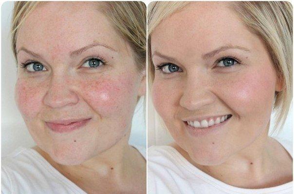 Как улучшить цвет лица отзывы