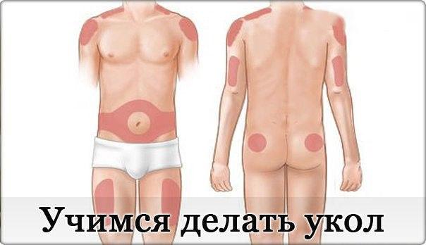 уколы в живот для сжигания жира тюмень