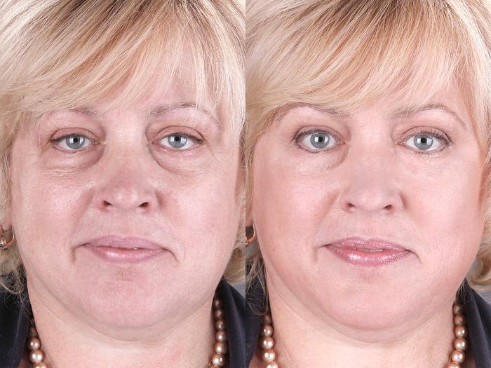 Крем для лица после 40 лет своими