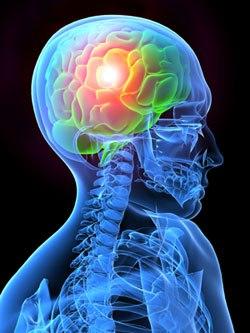 Типы головных болей... (250x333, 23Kb)