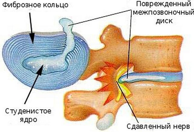препараты при онкологии 4 стадии