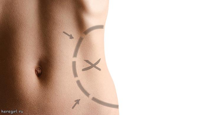 Как убрать нижнюю жировую складку на животе