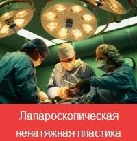 laparoskopicheskaya-natyazhnaya-plastika (200x205, 33Kb)