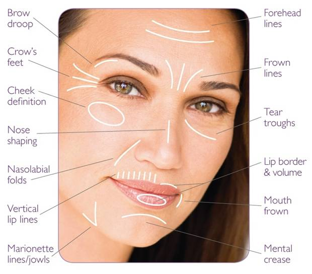 All-Areas-of-Face-for-Injectables (620x544, 37Kb)