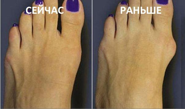 косточка на ноге после операции фото