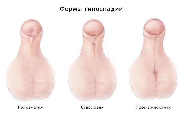 Как увеличить размер полового члена книг