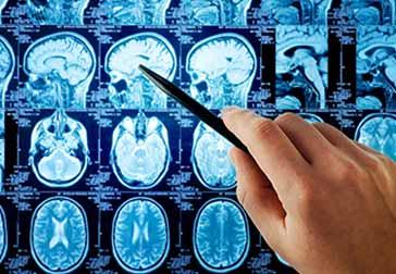 Опухоли-головного-мозга (364x252, 21Kb)
