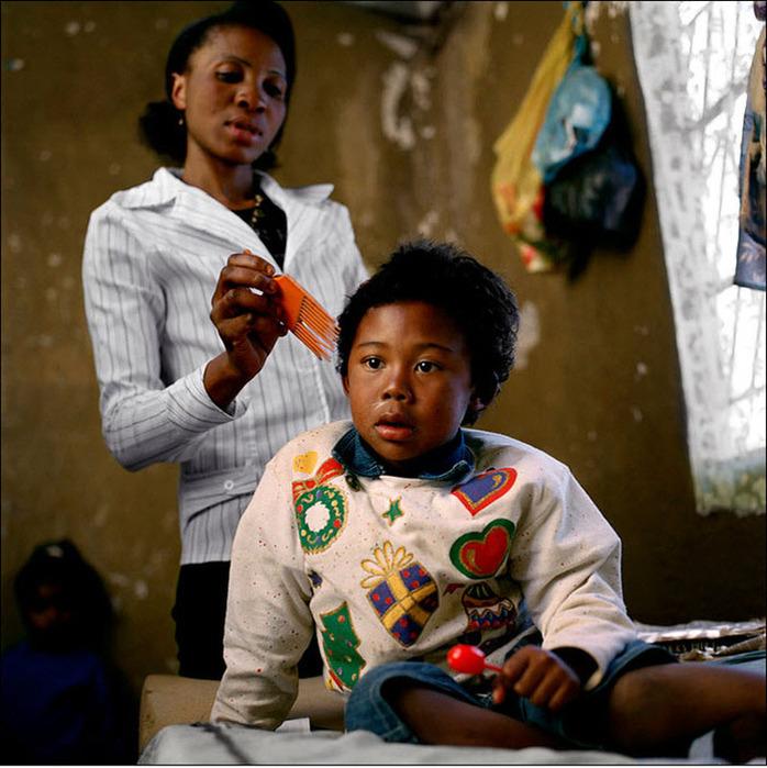 Когда Джонатан Калунга родился, он сразу стал изгоем в обществе. Сегодня он живет в отдаленной деревушке с бабушкой и дедушкой.